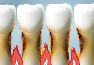 Rialto family dentist | gum disease treatment, bleeding gums| Rialto Family Dental Center