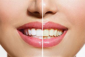 Rialto cosmetic dentist |teeth whitening | Rialto Family Dental Center